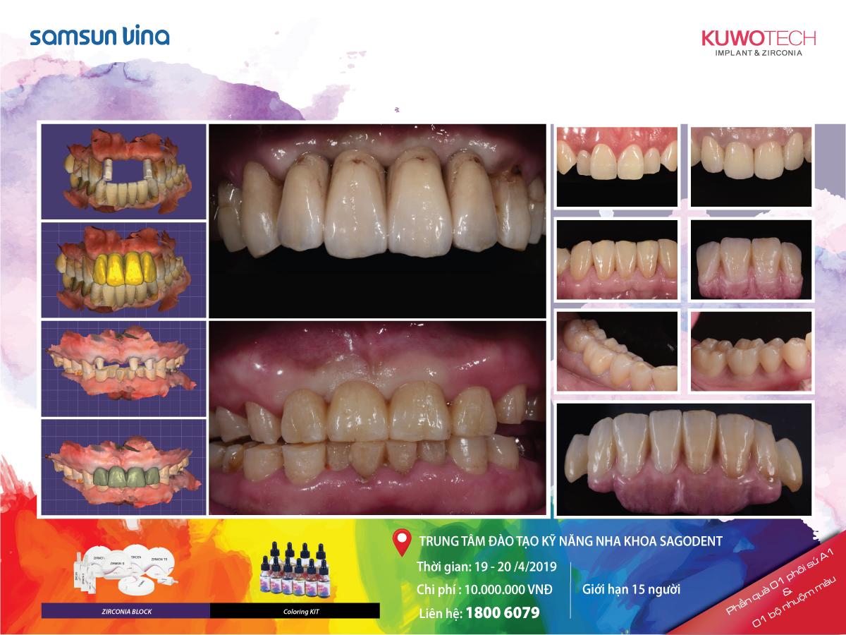 Khóa học Painting Dentistry - Nhuộm màu trên phôi Zirconia